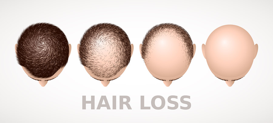 Acupuncture for hair loss cure and hair growth in Lake