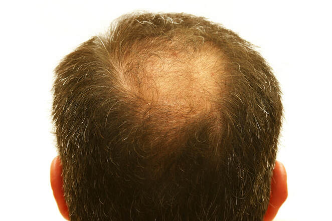 Acupuncture for alopecia hair loss treatment in Lake Forest